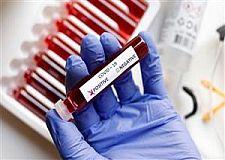 تسجيل 7 إصابات فقط بفيروس كورونا في المغرب وعدد حالات الشفاء يصل إلى 4969.