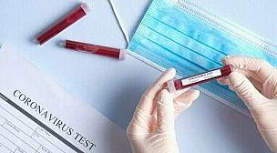"""تيزنيت.. الكشف عن نتائج مخالطي الحالة الأولى المصابة بفيروس """"كورونا""""."""